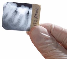 Dental Xrays