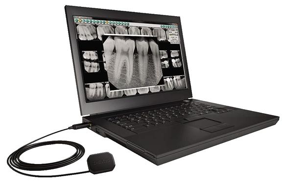 Digital Dental X Rays Chicago