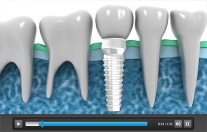 Dental Implants Chicago Cosmetic Dentist